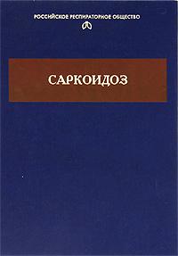 Саркоидоз